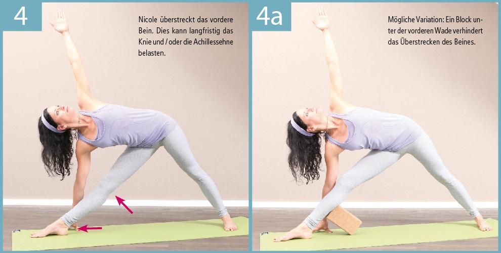 4) Sehr häufig kann man in Trikonasana die Überstreckung des vorderen Beines beobachten